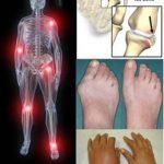 Kawalan Penyakit Gout Menggunakan Jus Delima Bio Emas