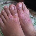 ekzema di bahagian kaki wanita dewasa sebelum guna jus delima bio emas