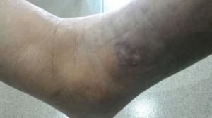 Jus Pati Delima Bio Emas merawat luka kencing manis - 95% sembuh pada hari ke 62